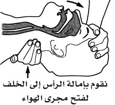 التهوية فماً لفم أو التهوية الاصطناعية