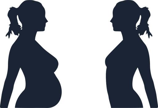 الحمل بعد جراحات إنقاص الوزن
