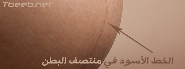 تغيرات جلد الحامل | البشرة خلال الحمل