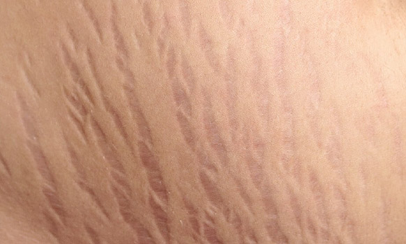 علامات تمدد جلد الحامل stretch marks