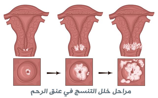خلل التنسج في عنق الرحم | حثل عنق الرحم Cervical dysplasia