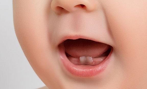 بقع رمادية على أسنان الطفل في الشهر السابع
