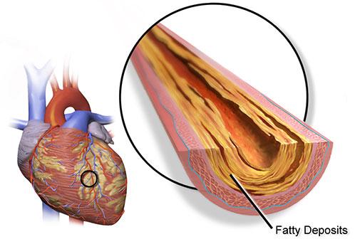 مرض القلب التاجي أو الشريان التاجي