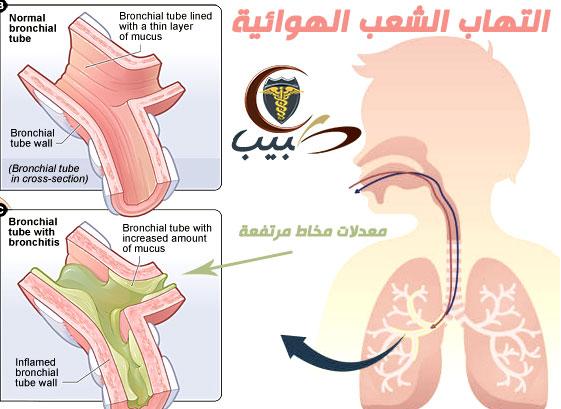 التهاب الشعب الهوائية Bronchitis