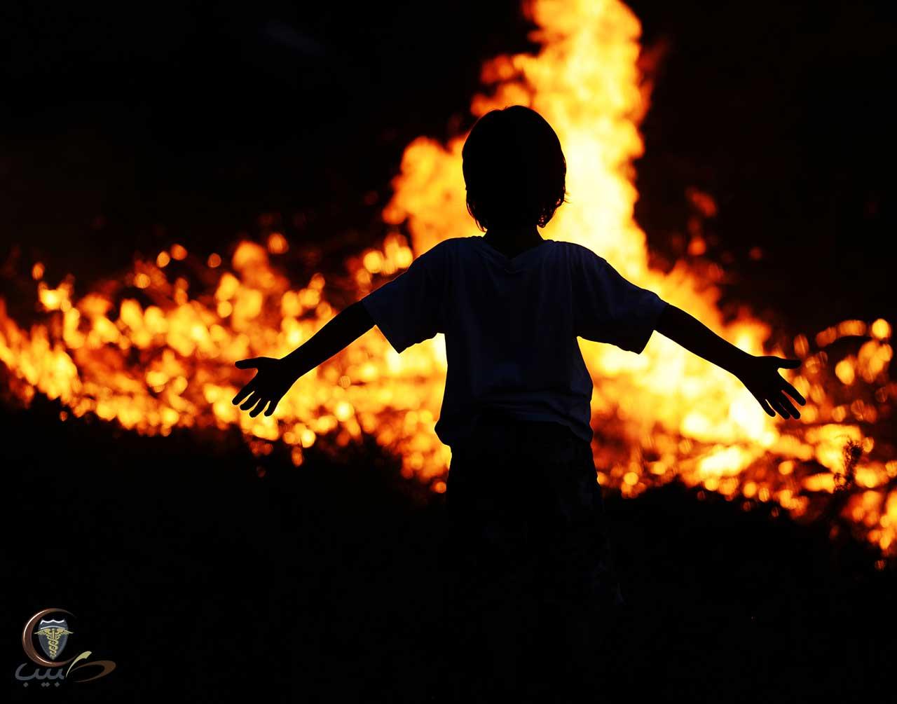 الإسعافات الأولية للطفل في حالة الحروق، الحرائق والدخان
