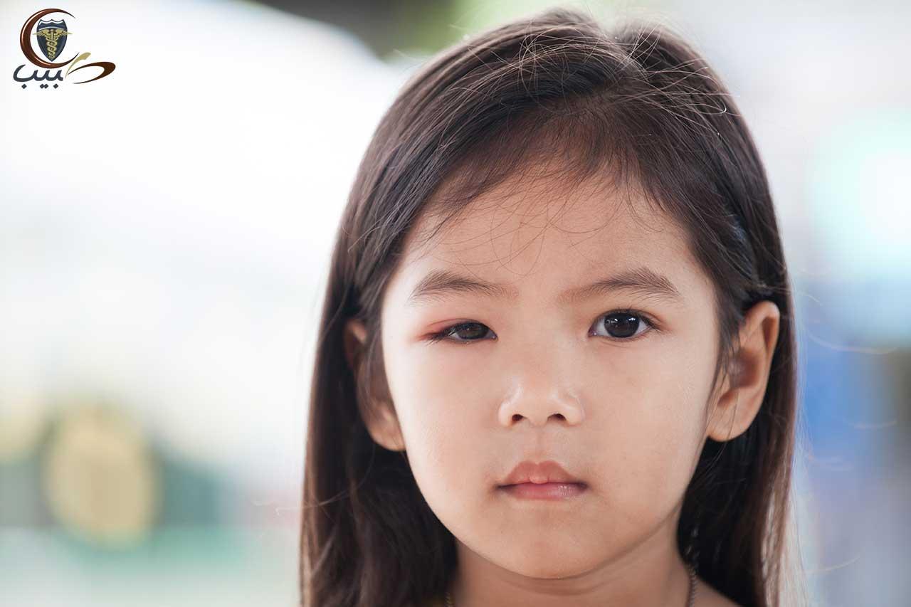 ردود الأفعال التحسسية للطفل