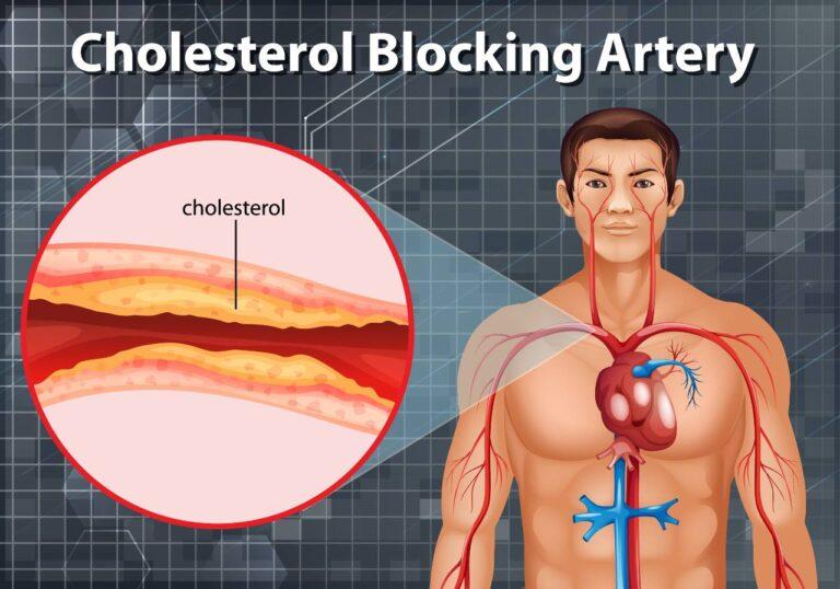 ما أضرار الكوليسترول