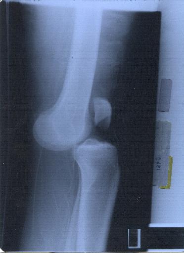 c61b8ec2c9e64 ... خاصة - ومن الكشوف المتقدمة-  التصوير المغناطيسي   إجراء المنظار للركبة