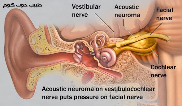 الورم العصبي السمعي Acoustic neuroma