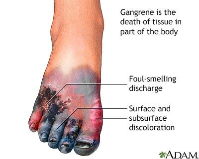 غرغرينة - غنغرينة - موات - موت عضوي Gangrene
