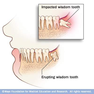 Impacted_wisdom_teeth.jpg