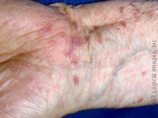 الحزاز الجلدي، حزاز مسطح Lichen Planus