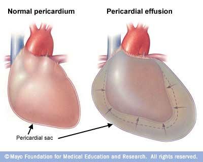 Pericarditis التهاب التامور، التهاب غلاف القلب