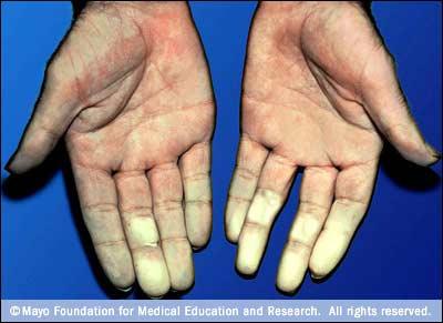 Raynaud disease