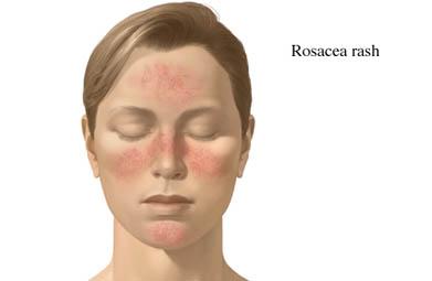Rosacea الوردية، العد الوردي