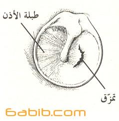 Ruptured_eardrum.jpg