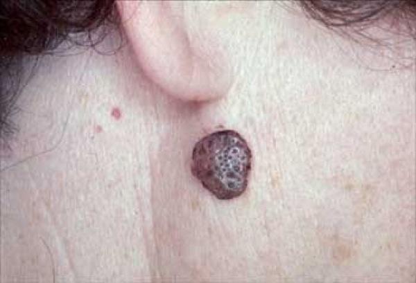 Seborrheic Keratoses التقرن الزهري (الدهني) السيلاني، التهاب الجلد المثي، التقرانات الدهنية