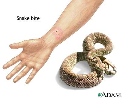 لدغة الثعبان Snake Bite