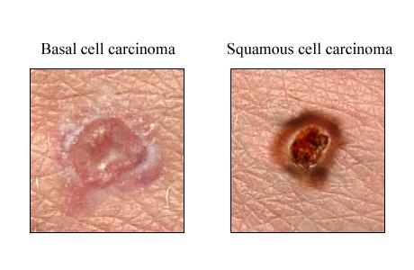 سرطان الخلية الحرشفية Squamous Cell Carcinoma