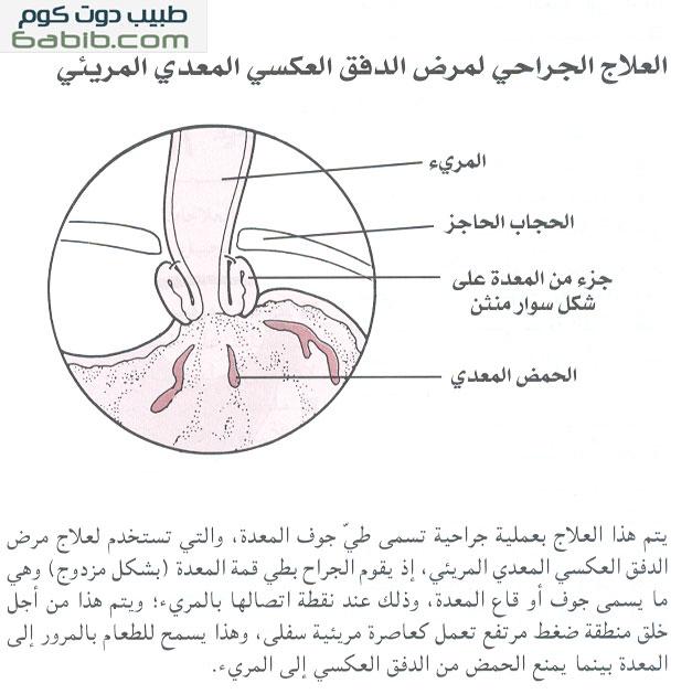 العلاج الجراحي لمرض ارتجاع المعدي المريئي Surgery for Gastroesophageal Reflux Disease
