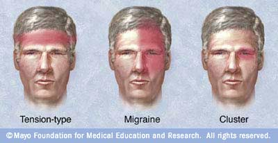 headache types انواع الصداع