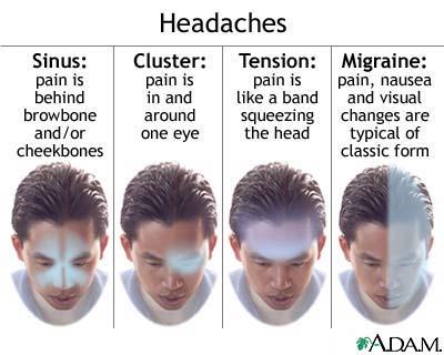 headache type انواع الصداع