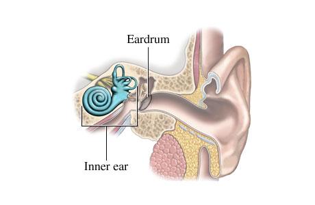 مرض مانيير، داء منيير، دوار أذني المنشأ meniere's disease