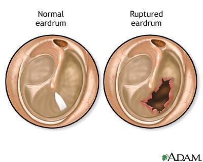 ruptured-eardrum.jpg