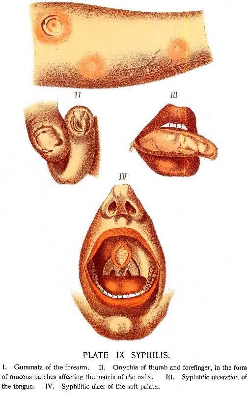 syphilis الزهري، السلفس