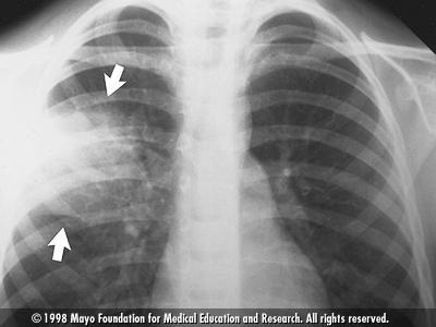 Chest X-ray showing pneumonia