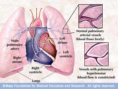 ارتفاع ضغط الدم الرئوي Pulmonary Hypertension
