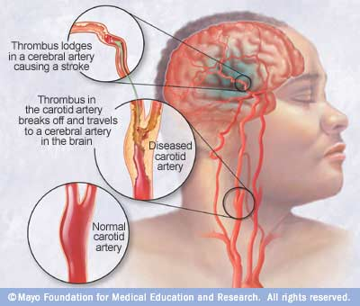 Ischemic stroke occurs when a blood clot (thrombus) blocks or plugs an artery leading to the brain. A blood clot often forms in arteries damaged by buildup of plaques (atherosclerosis). It can occur in the carotid artery of the neck as well as other arteries